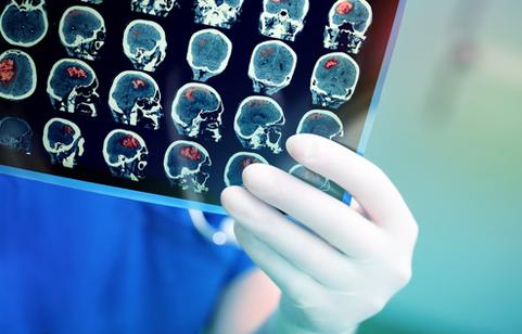 Une main gantée qui tient une IRM cérébrale